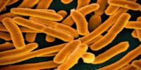 Speedy Bacteria Detector Could Help Prevent Foodborne Illnesses