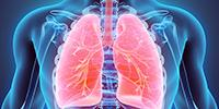 IDbyDNA and ARUP Laboratories Introduce Explify Respiratory: Breakthrough Technology to Diagnose Pneumonia Caused by Previously Undetected Pathogens