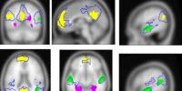 Brain Researchers Gain Greater Understanding of How We Generate Internal Experiences