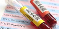 New Cholesterol Test May Allow Patients to Pass on Fasting, Study Suggests
